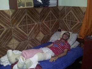 Hugo está com as pernas engessadas por conta da última cirurgia, em julho deste ano Foto: Sérgio Tadeu da Silva/Arquivo Pessoal)