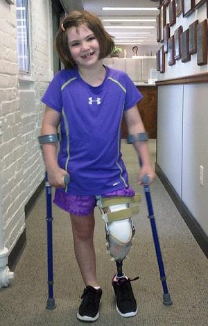 Jane Richard mostra prótese (Foto: Arquivo Pessoal/AP)