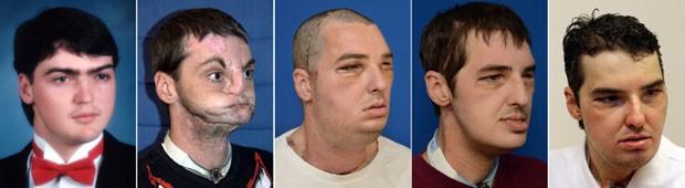 face-transplant-patie_fran
