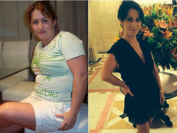 Antes e Depois. 'Eu me sinto outra pessoa, me sinto mais jovem', diz Leandra (Foto: Leandra Mello Pessoa/Arquivo pessoal)