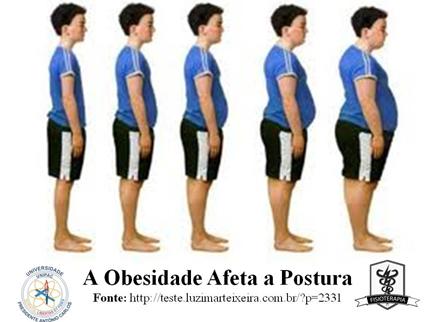 efeitos-da-obesidade-na-postura